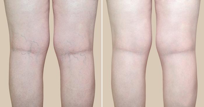 varicose and spider vein treatment in decatur, GA