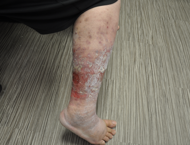 Example of Venous Ulcers