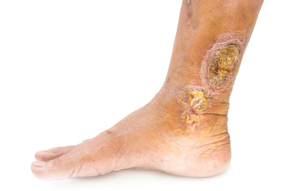 Venous Leg Ulcers