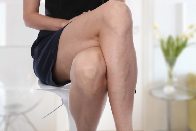 Woman's legs with visible veins